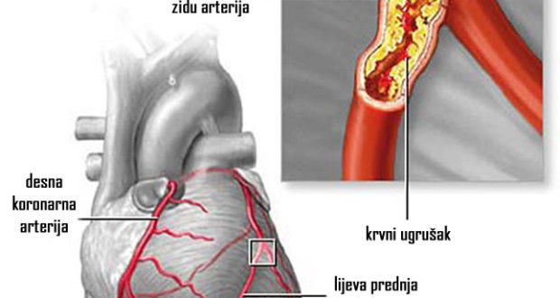 Ove tri namirnice RAZBIJAJU zakrčenja arterija i masnoću u krvi