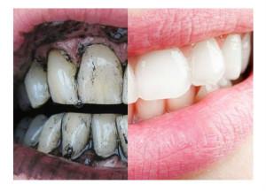 Za 5 minuta izbijelite zube. Kako izbijeliti zube aktivnim ugljem.